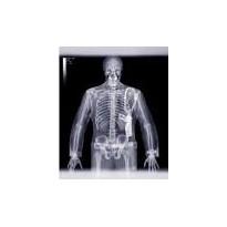 کاردانی به کارشناسی رادیولوژی